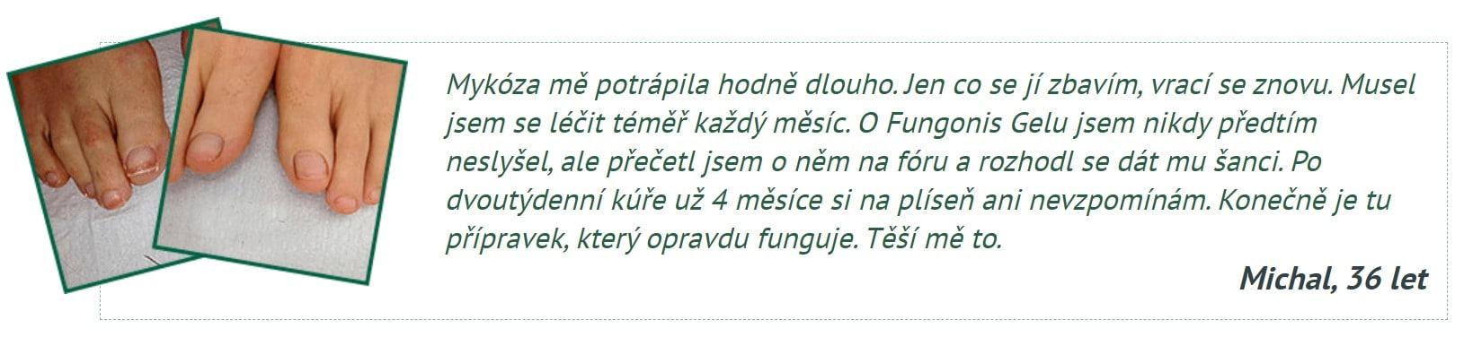 názory Fungonis Gel
