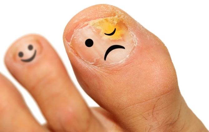 Qué esperar si no curamos el hongo de los pies