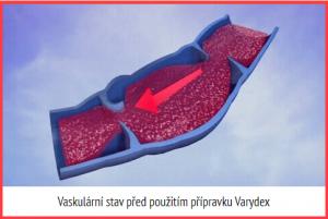 Vaskulární stav před použitím přípravku Varydex