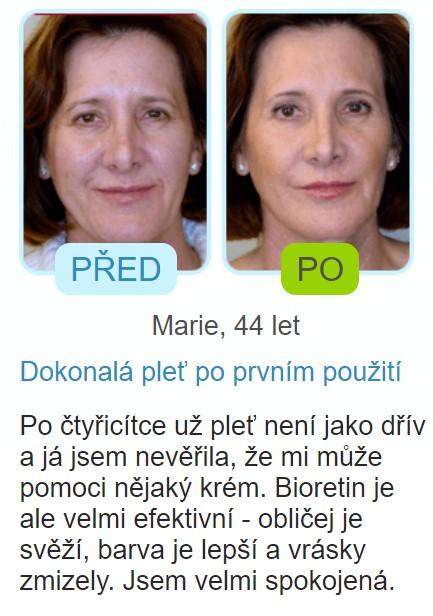 recenze Bioretin