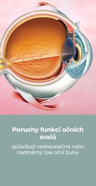 Poruchy funkci očních svalů